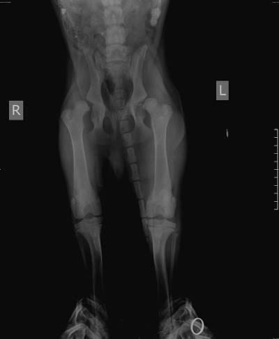 рентгенограмма тазобедренных суставов h l d дисплазия
