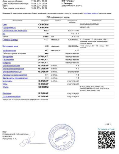 Инвитро общий анализ мочи цена москва